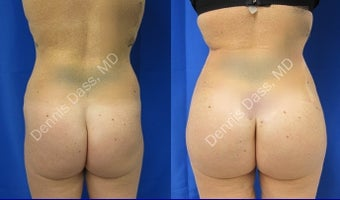 Buttock augmentation before 874647