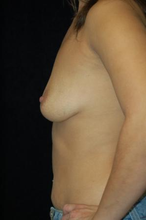 Breast Augmentation, gel implants 392059