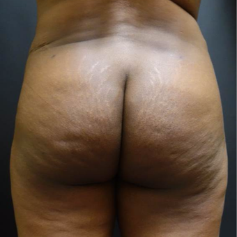 35-44 year old woman treated with Brazilian Butt Lift after 3372822