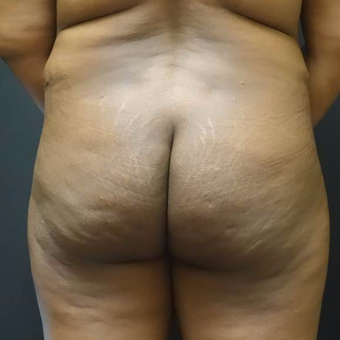 35-44 year old woman treated with Brazilian Butt Lift before 3372822