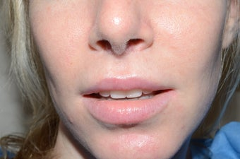 Upper Lip Lift