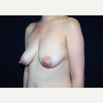 35-44 year old woman treated with Breast Implants before 3441013
