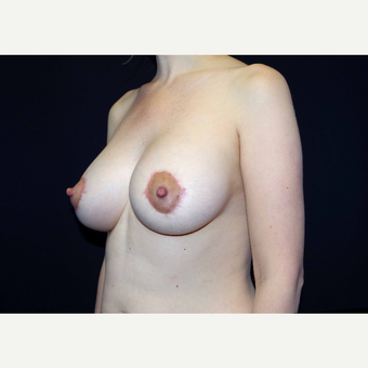 35-44 year old woman treated with Breast Implants after 3441013