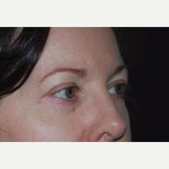 Eyelid Surgery after 3148552