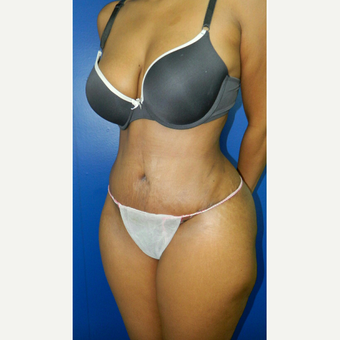 35-44 year old woman treated with Tummy Tuck after 3132729