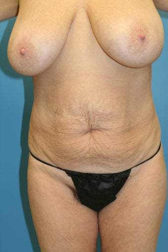 57 Year old Female before 1254026