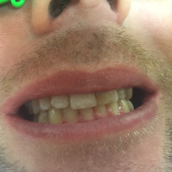 30 year old man treated with 10 Porcelain Veneers