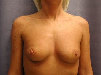 Breast Augmentation (saline implants) before 1105076