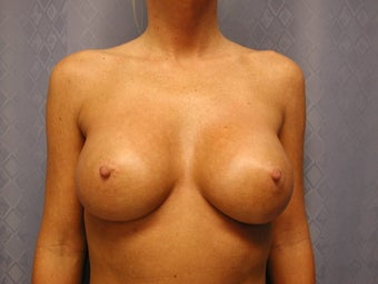 Breast Augmentation (saline implants) after 1105076