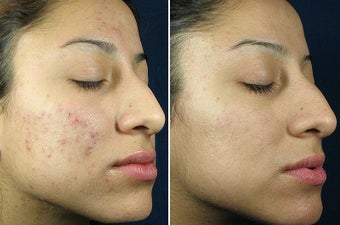 Chemical Peel before 402124