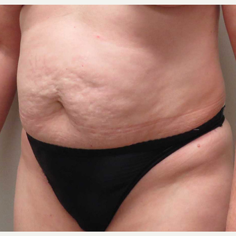 Tummy Tuck for this 51 Year Old Woman before 3043094
