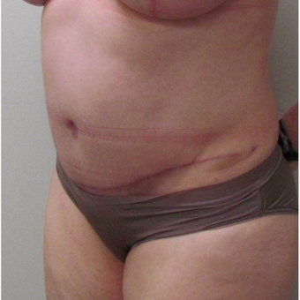 Tummy Tuck for this 51 Year Old Woman after 3043094