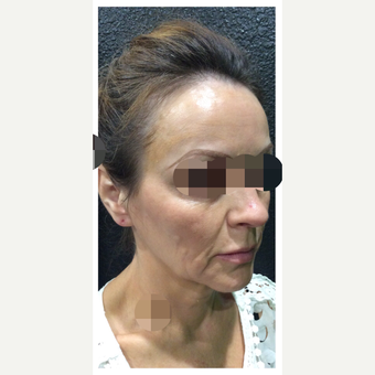 45-54 year old woman treated with Ultherapy after 3284156