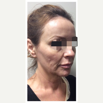 45-54 year old woman treated with Ultherapy before 3284156