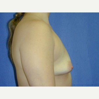 35-44 year old woman treated with Breast Augmentation 1711622
