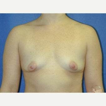 35-44 year old woman treated with Breast Augmentation before 1711622