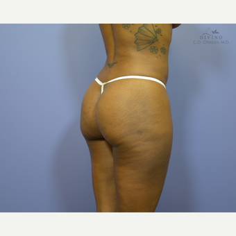 35-44 year old woman treated with Brazilian Butt Lift after 3418916