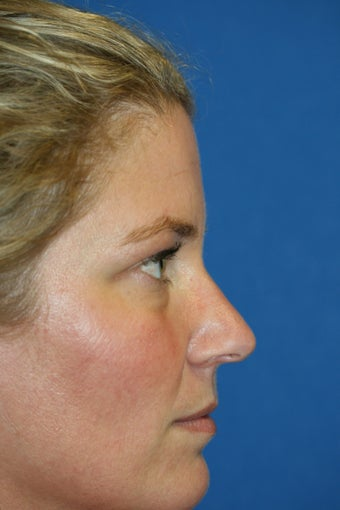 Lower Blepharoplasty and Fat Transfer before 1023416