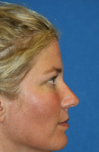 Lower Blepharoplasty and Fat Transfer after 1023416