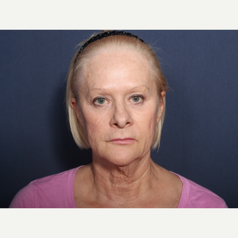 65-74 year old woman treated with Neck Lift (view 1 of 2) before 3259223