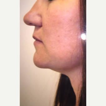 25-34 year old woman treated with Chin Liposuction after 3379165