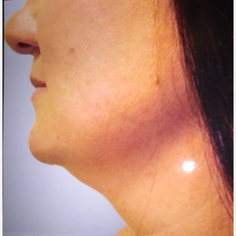 25-34 year old woman treated with Chin Liposuction before 3379165