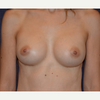 35-44 year old woman treated with Breast Augmentation after 3455295