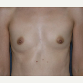 35-44 year old woman treated with Breast Augmentation before 3455295