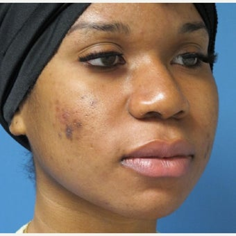18-24 year old woman treated with African American Rhinoplasty before 2435127