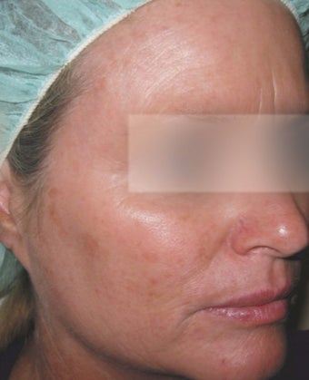35-44 year old woman treated with MicroLaser Peel