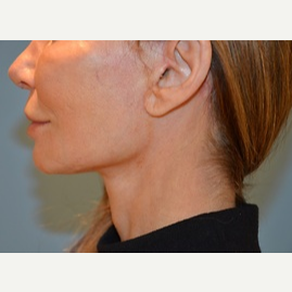 35-44 year old woman treated with Facelift, Necklift after 3065338
