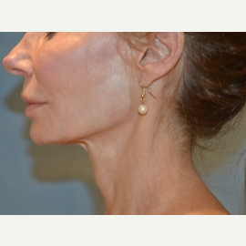 35-44 year old woman treated with Facelift, Necklift before 3065338
