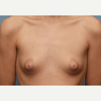 18-24 year old woman treated with Breast Implants before 3387819