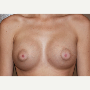 18-24 year old woman treated with Breast Implants after 3387819
