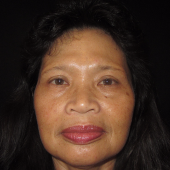 55-64 year old woman treated with Asian Rhinoplasty before 3320507