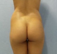 Supercharged buttock implants with oval implants intramuscularly and fatgrafting before 2141953
