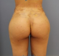 Supercharged buttock implants with oval implants intramuscularly and fatgrafting after 2141953