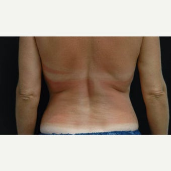 35-44 year old woman treated with CoolSculpting for Back/Bra Fat before 1704640