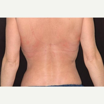 35-44 year old woman treated with CoolSculpting for Back/Bra Fat after 1704640