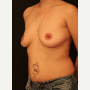 25-34 year old woman treated with Breast Augmentation before 3731870