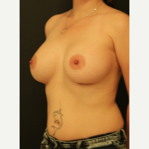 25-34 year old woman treated with Breast Augmentation after 3731870