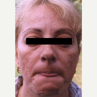 45-54 year old woman treated with Chemical Peel before 3543581