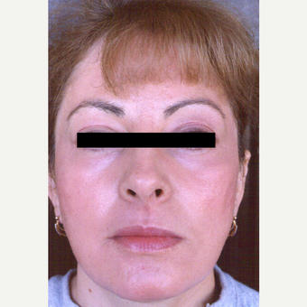 45-54 year old woman treated with Chemical Peel after 3543581
