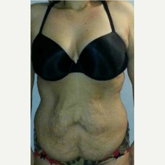 35-44 year old woman treated with Tummy Tuck before 2063381