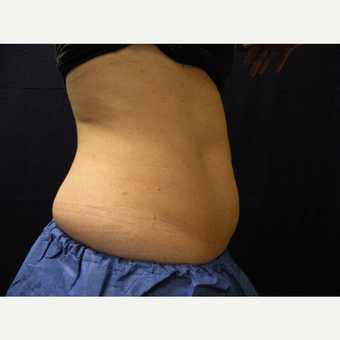35-44 year old woman treated with CoolSculpting before 3680352