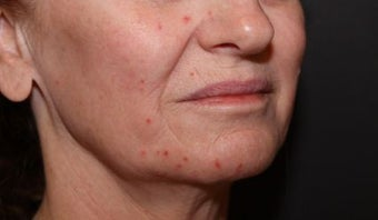 Laser Fractional Resurfacing before 1058300