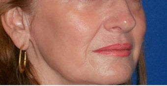 Laser Fractional Resurfacing after 1058300