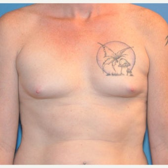 Transgender (male to female) Breast Augmentation before 2420982