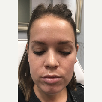 18-24 year old woman treated with Juvederm Volbella before 3769925