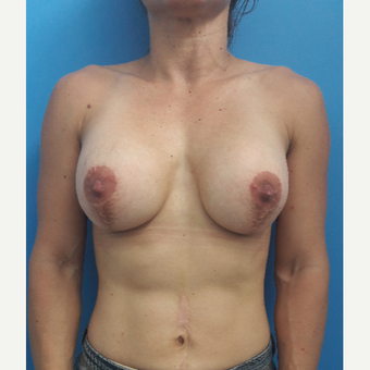 25-34 year old woman treated with Breast Implant Revision before 2993613